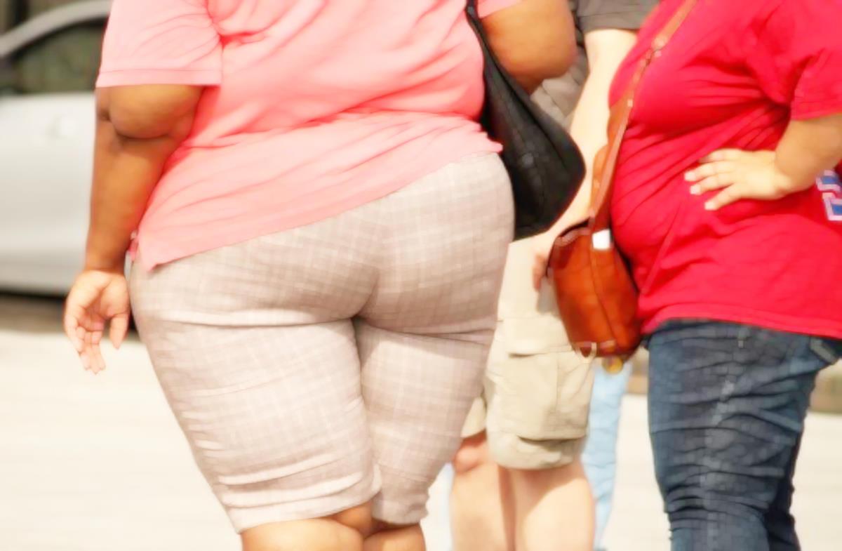 La demenza nelle donne sembra legata anche all'obesità