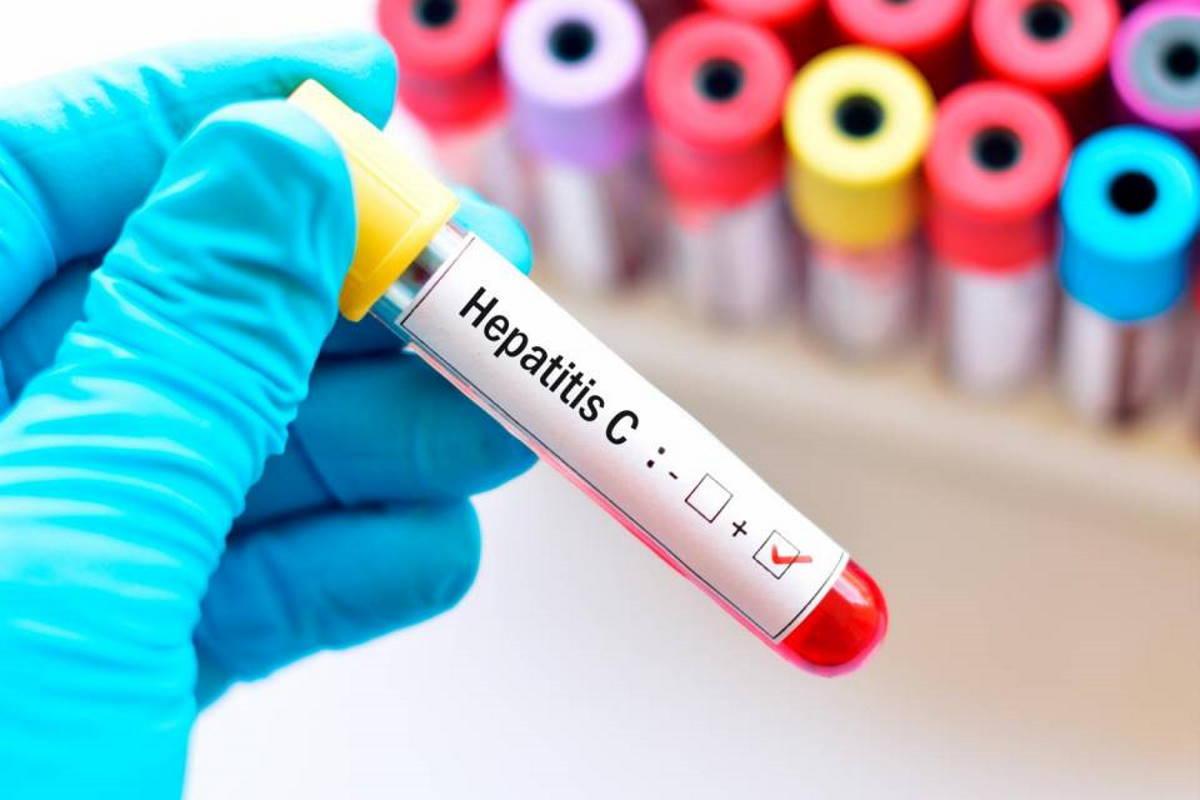 Il ministro Speranza ha firmato lo schema di decreto per lo screening gratuito in Italia per l'Epatite C